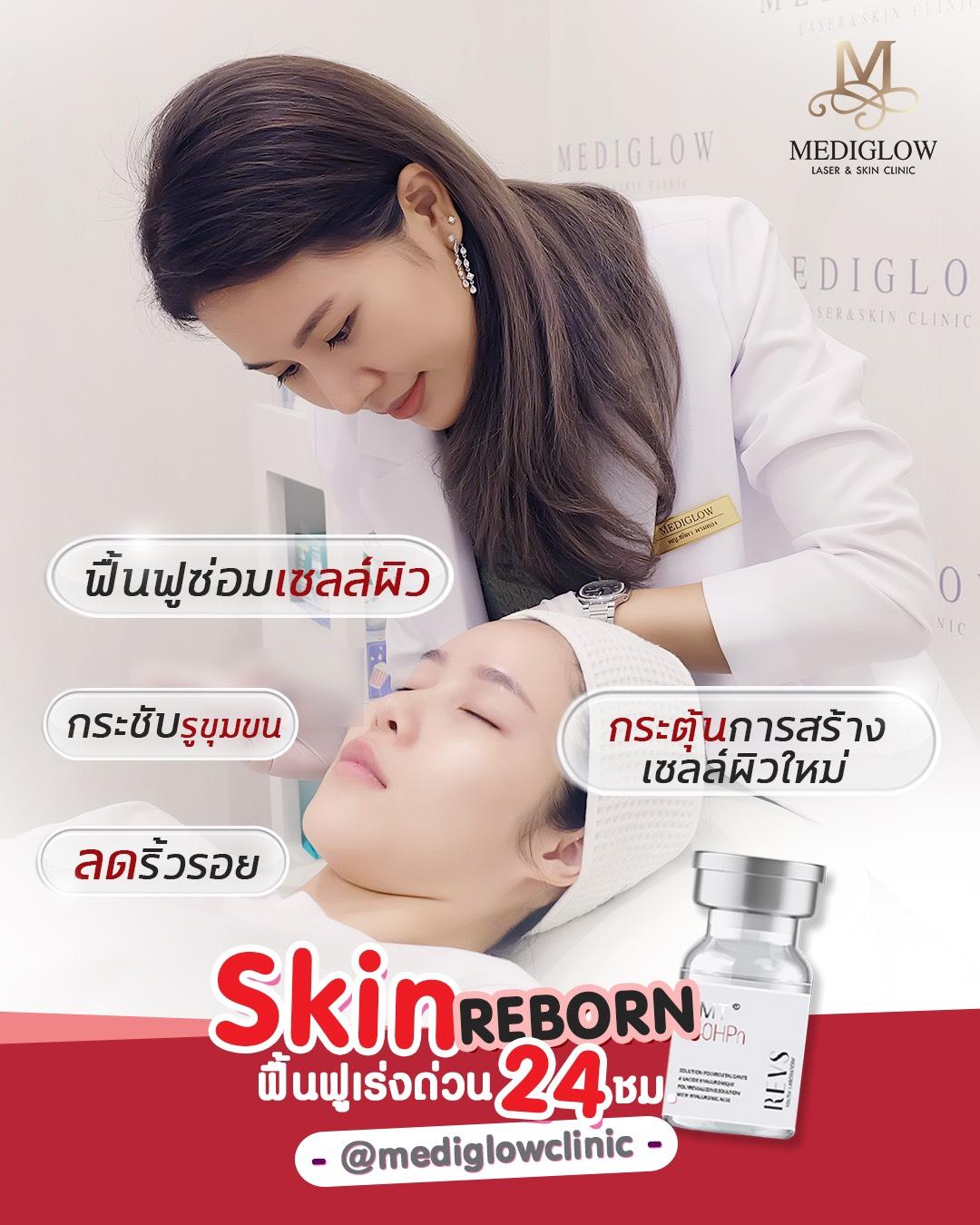 Skin Reborn โกงอายุผิว ย้อนอายุเซลล์ผิว